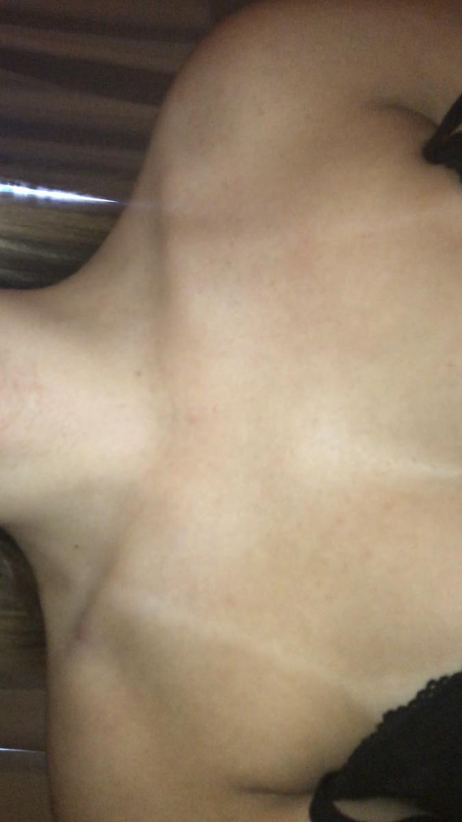 Back acne please help