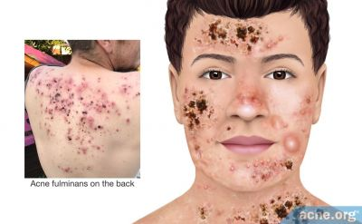 What Is Acne Fulminans?