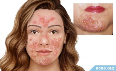 What Is Pyoderma Faciale?