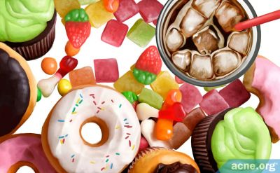 Do Sugary Foods and Drinks Cause Acne?