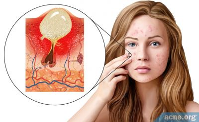 Exactly How Does Acne Form Now That Scientists Believe It Is Primarily Inflammatory?