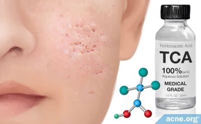 How Trichloroacetic Acid (TCA) Reduces Acne Scars (and May Also Help with Acne)