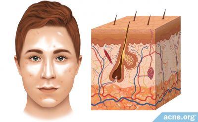 The Role of Sebum (Skin Oil) in Acne