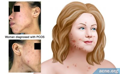 What Is Polycystic Ovary Syndrome (PCOS), and How Does It Affect Acne?