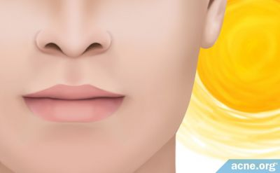 Does the Sun Burn/Tan Your Lips, and Do You Need to Protect Them?