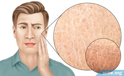 Dry Skin: Causes and Treatments
