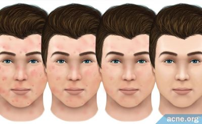 How Do Acne Lesions Heal?