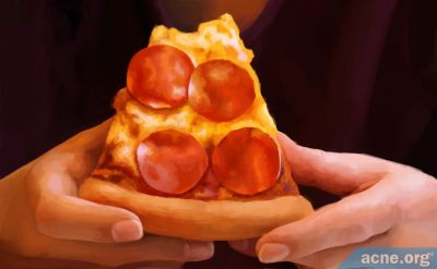 Is Pizza Bad for Acne?