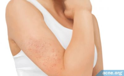 Keratosis Pilaris  -  Symptoms, Causes, and Treatments