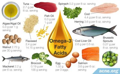 Omega-3 Fatty Acids and Acne