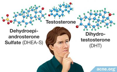 The Role of Hormones in Acne