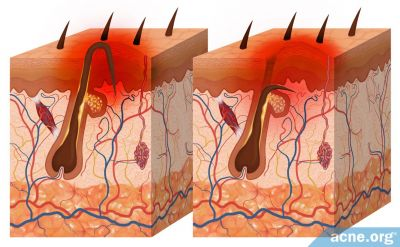 What Are Ingrown Hairs?