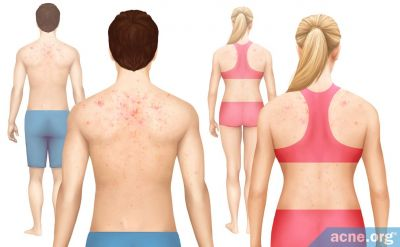 Who Gets Body Acne More--Males or Females?