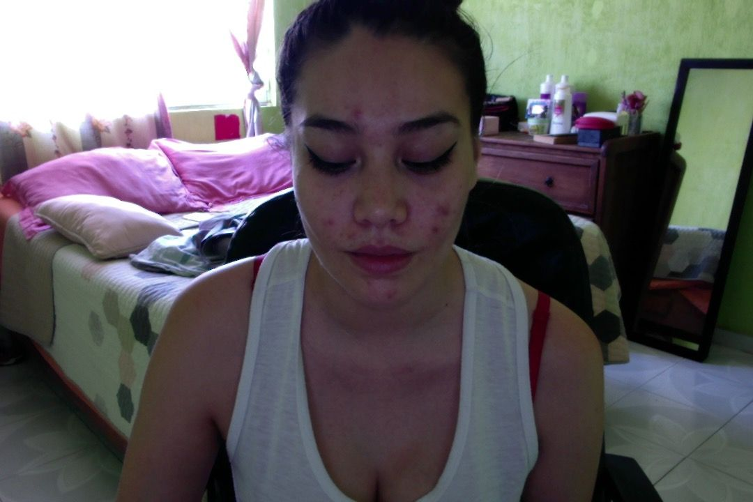 process of my acne treatment