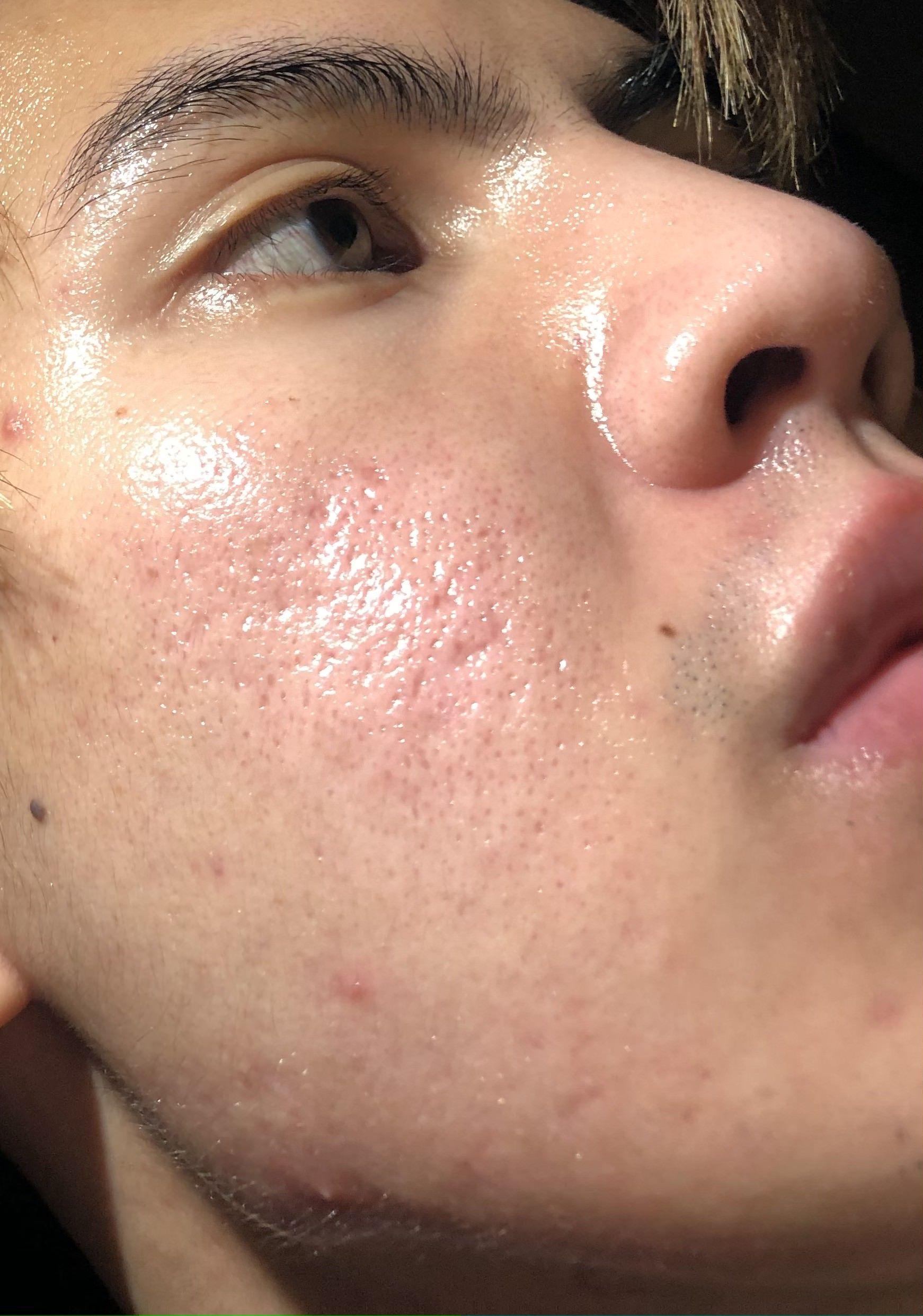adult care acne treatment