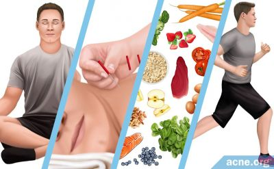 Alternative Therapies for Acne