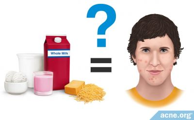 Does Lactose Intolerance Relate to Acne?