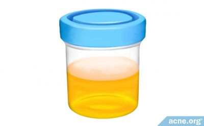 Urine Therapy for Acne