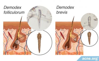 What Are Demodex Mites, and What Role Do They Play in Acne?
