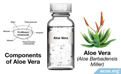 Can Aloe Help Acne?