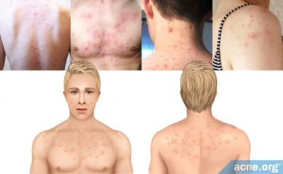 Back and Body Acne