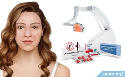Can Acne Medications or Treatments Age the Skin?