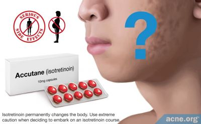 Does Isotretinoin Help with Acne Scars?