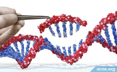 Genetic Treatments for Acne