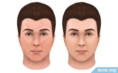 What Is the Difference Between Inflamed and Non-inflamed Acne?