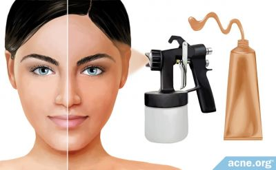 Are Self-tanners Safe for Acne-prone Skin?