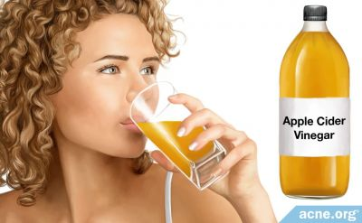 Can Drinking Apple Cider Vinegar Help with Acne?