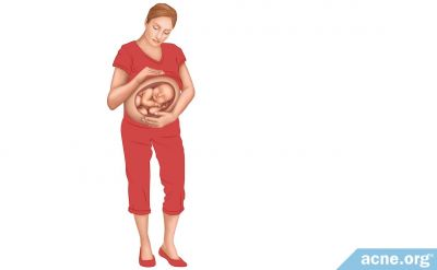 Does Pregnancy Cause Acne?