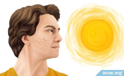 Does Sun Exposure Make Acne Scars Worse?
