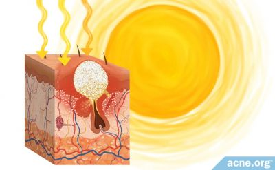 Does the Sun Help or Hurt Acne?
