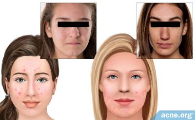 How Is Teen Acne Different from Adult Acne?