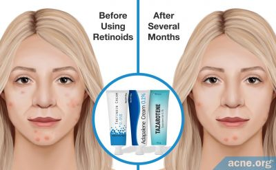 If You Use Retinoids, Will You Get Younger-looking Skin as You Treat Your Acne?
