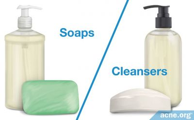 Soaps or Cleansers: Which Is Better for Acne-prone Skin?