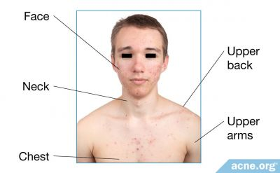 Why Do People Get Acne Mostly on the Face and Upper Body?
