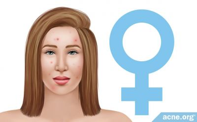 Female Acne