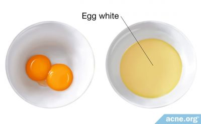 Can an Egg White Mask Help Your Acne?