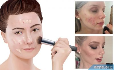 Does Makeup Help with Self-esteem When You Have Acne?