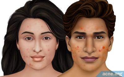 Indian Skin and Acne