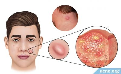What Is an Acne Nodule?