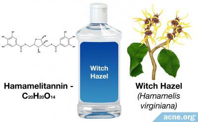 Can Witch Hazel Help Acne?