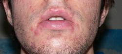 Insanely Painful Cysts All Around Mouth - Please Help! (Pic ...