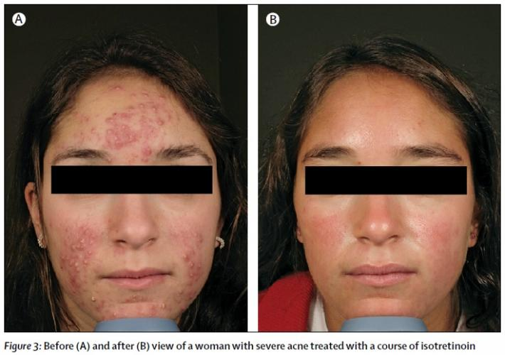Before and after Isotretinoin.jpg