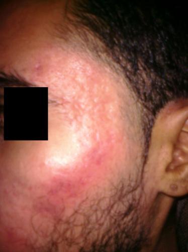 scars 2.jpg