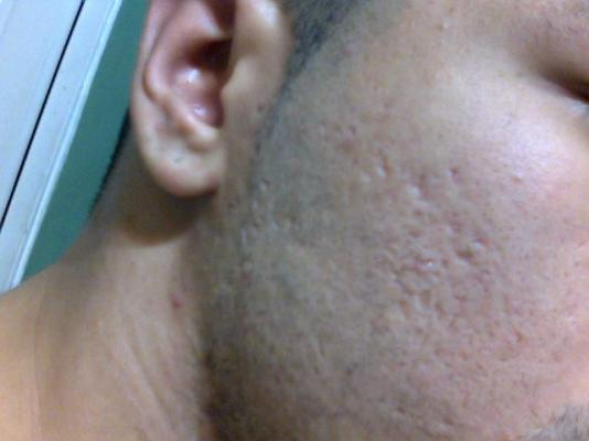 acne scarring.jpg