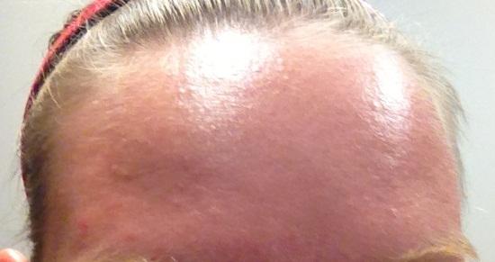 foreheadday8.JPG