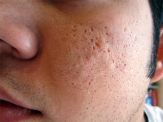 Non Inflamed Acne And Scars Pics Scar Treatments